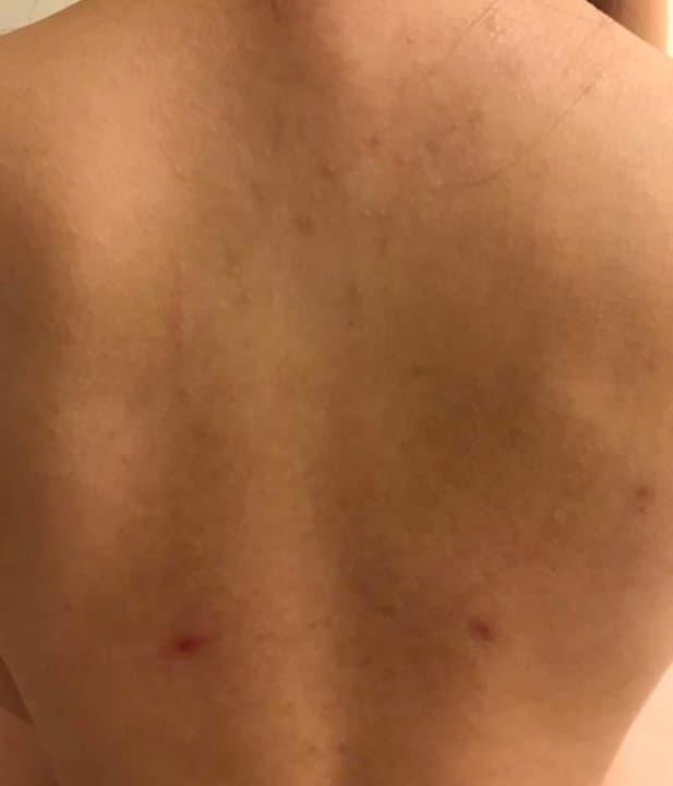 10大台灣常見皮膚問題